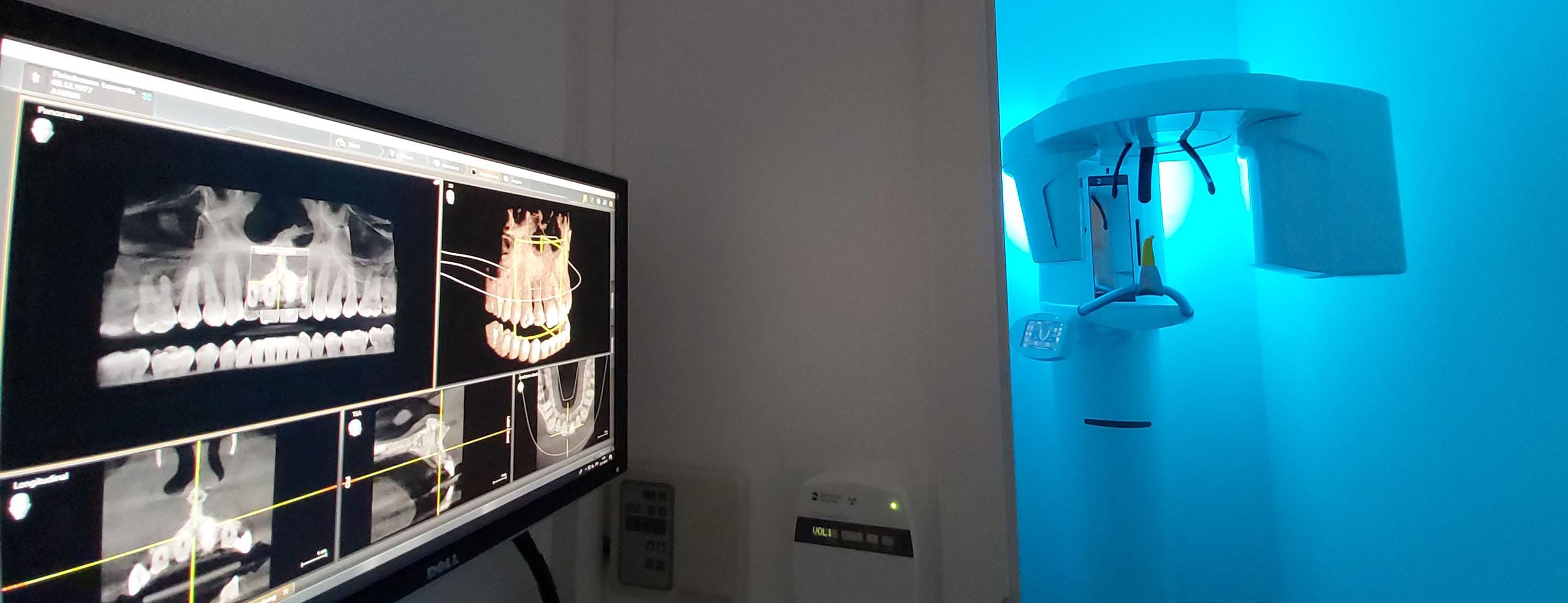 Röntgen
